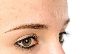 Acne Comedonica is the mildest form of acne