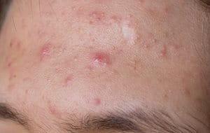 Facial acne types include Acne Papulopustulosa