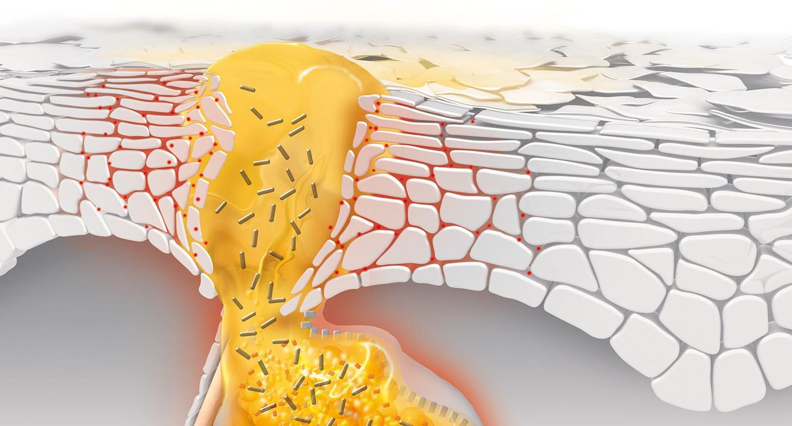 Příčiny akné: jak dochází ke tvorbě pupínků