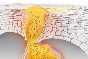 Co způsobuje vznik černých teček, bílých teček a pupínků a jak dochází krozvoji akné?