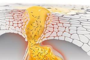 Čo spôsobuje akné, príčiny akné, príčiny akné na tvári, prečo sa objavuje akné