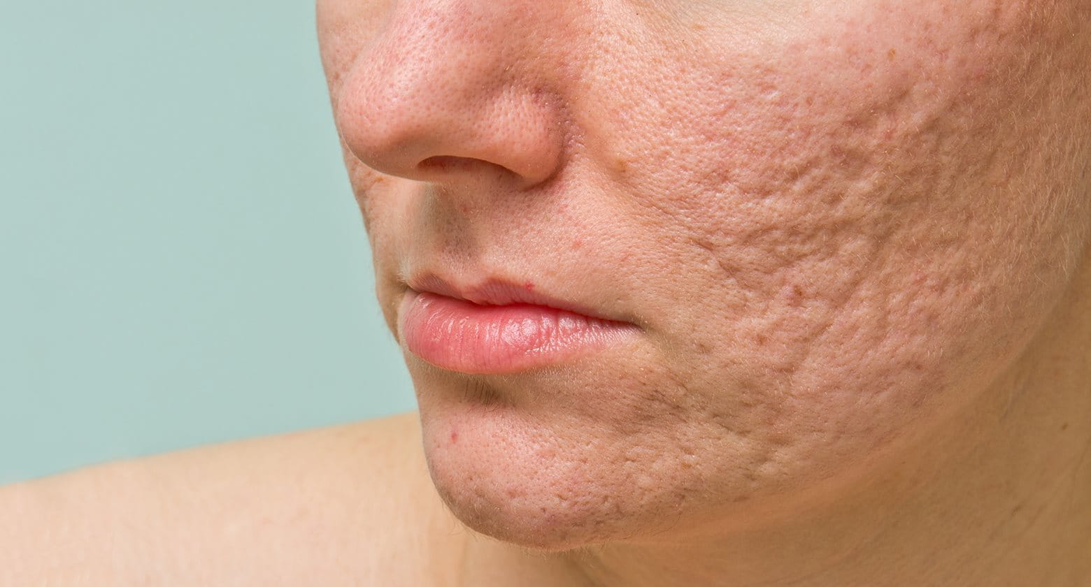 How to treat and remove acne scars