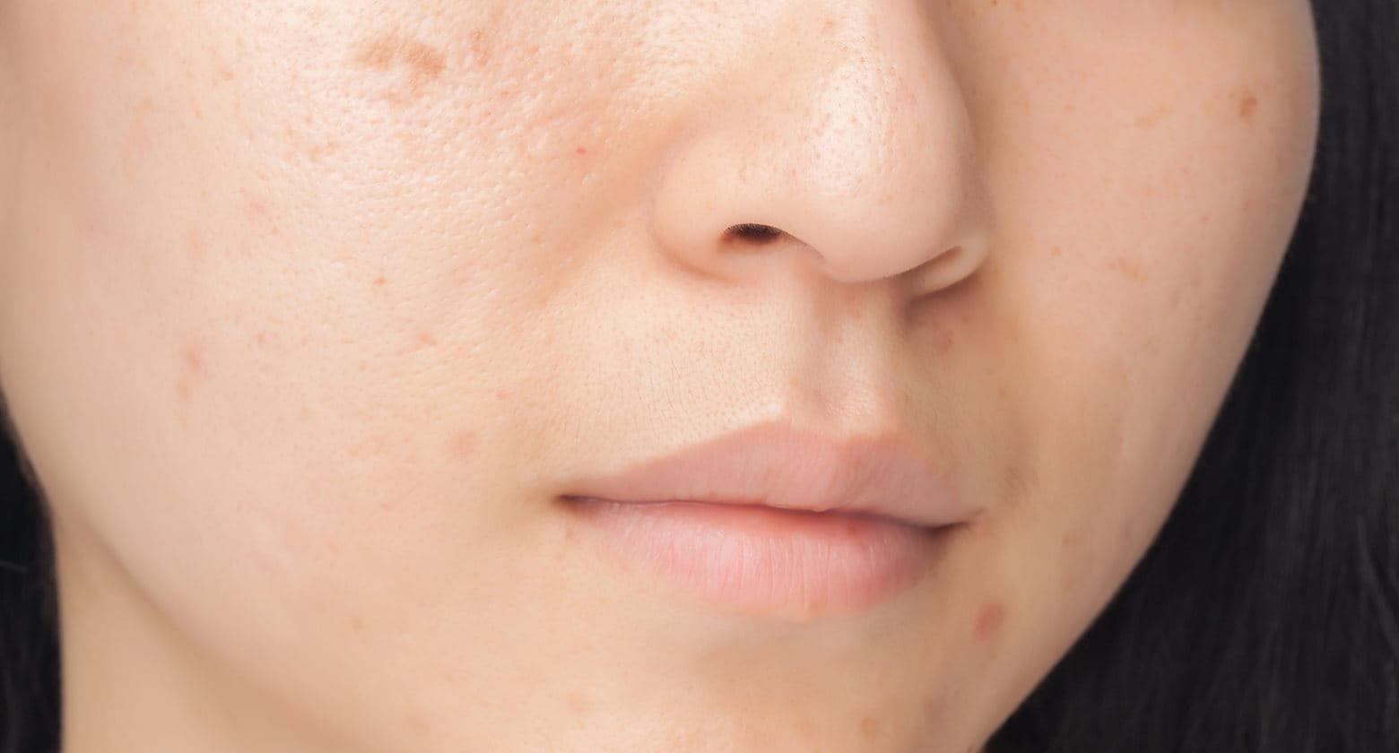 Tragovi od bubuljica mogu se umanjiti i ukloniti