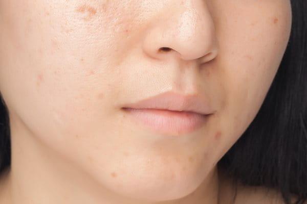 Acne and hormones