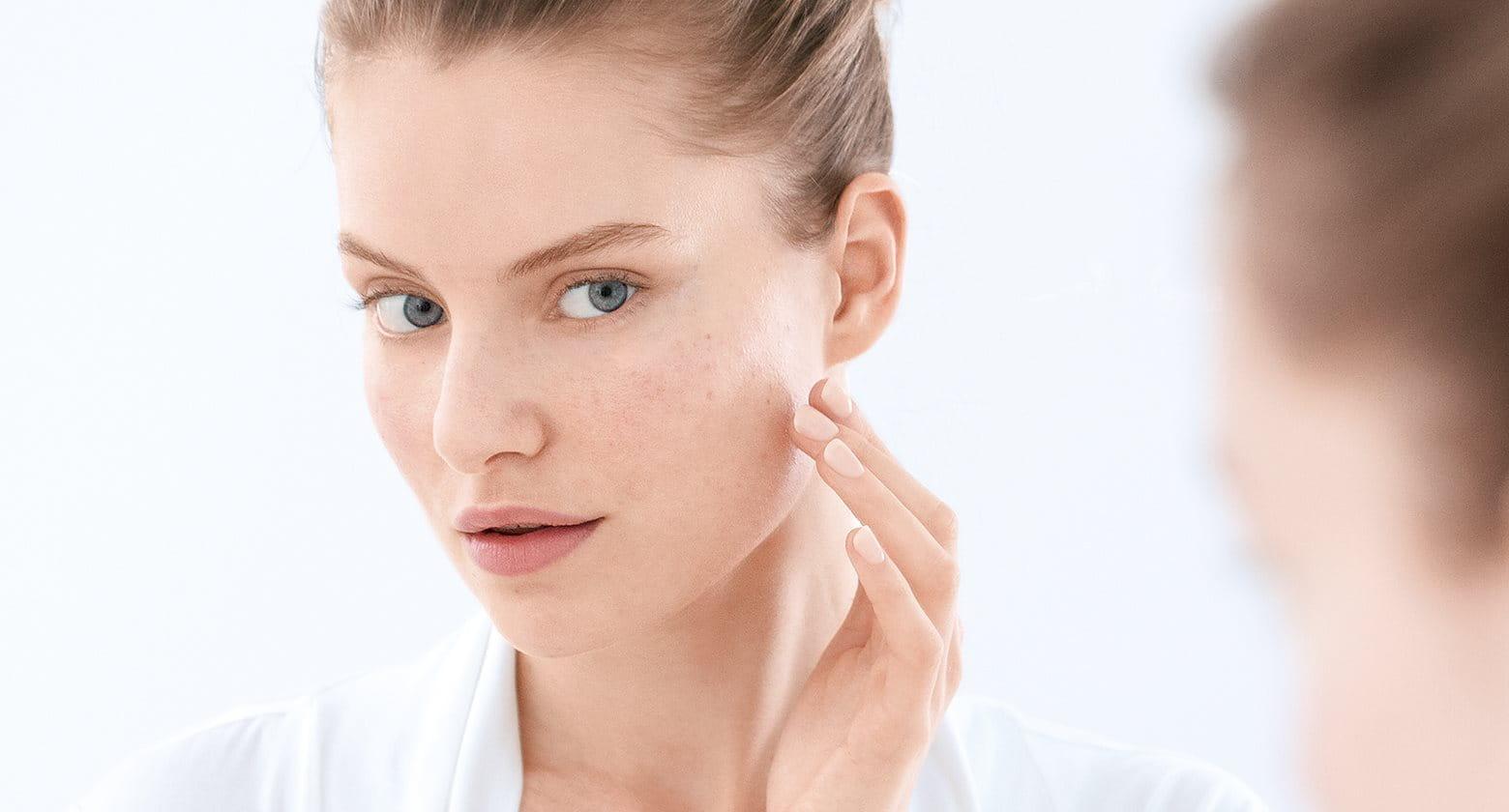 Pimples, blackheads and blemish-prone skin
