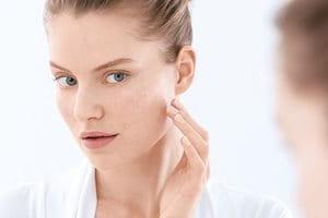 Koža sklona aknama: uzroci, okidači, simptomi i saveti