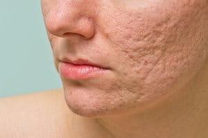 Aknenarben entfernen und behandeln