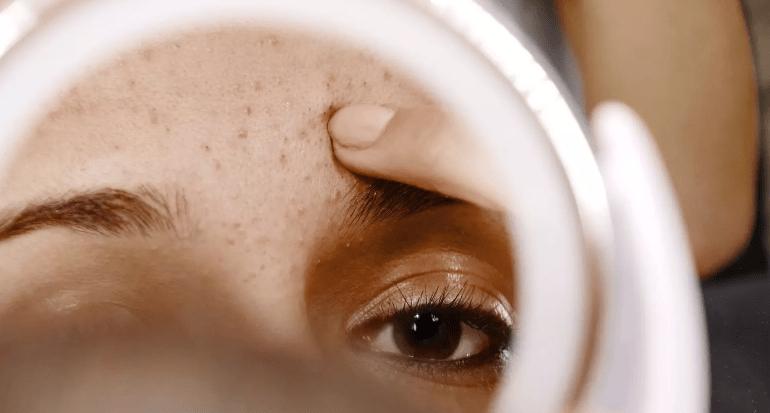 Quels sont les différents types d'acné ?