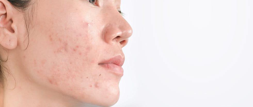 Postinflamatorna hiperpigmentacija zaradi aken