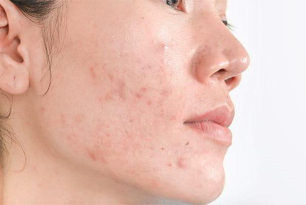 Pozápalové hyperpigmentácie po akné