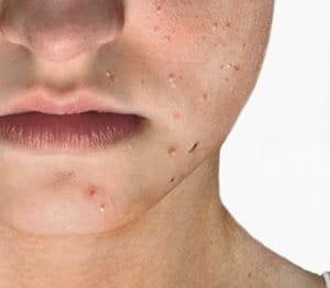 Imagen de los grados de gravedad del acné.