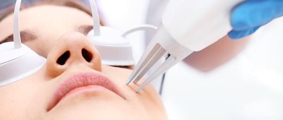 Laserová terapie: laserové ošetření pleti