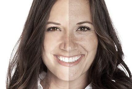 usporedba utjecaja fotostarenja na kožu