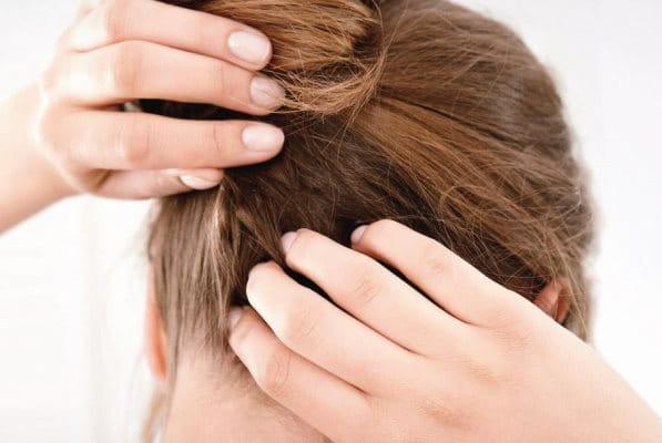 Frau kratzt sich die juckende und trockene Kopfhaut