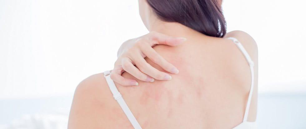Junge Frau mit Mallorca Akne kratzt sich am Rücken