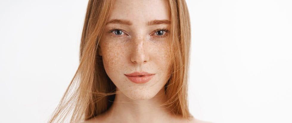 Sommersprossen im Gesicht