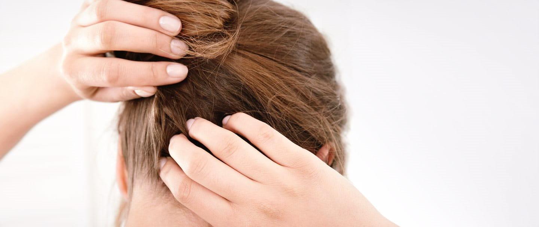 Eine Frau kratzt ihre juckende und trockene Kopfhaut