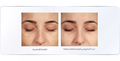 Eucerin Even Pigment Perfector يحد من فرط التصبغ