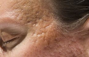 gropar i huden